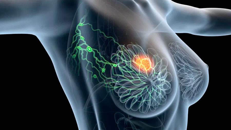 Investigadores españoles hallan los primeros indicadores para pronosticar el cáncer de mama más agresivo