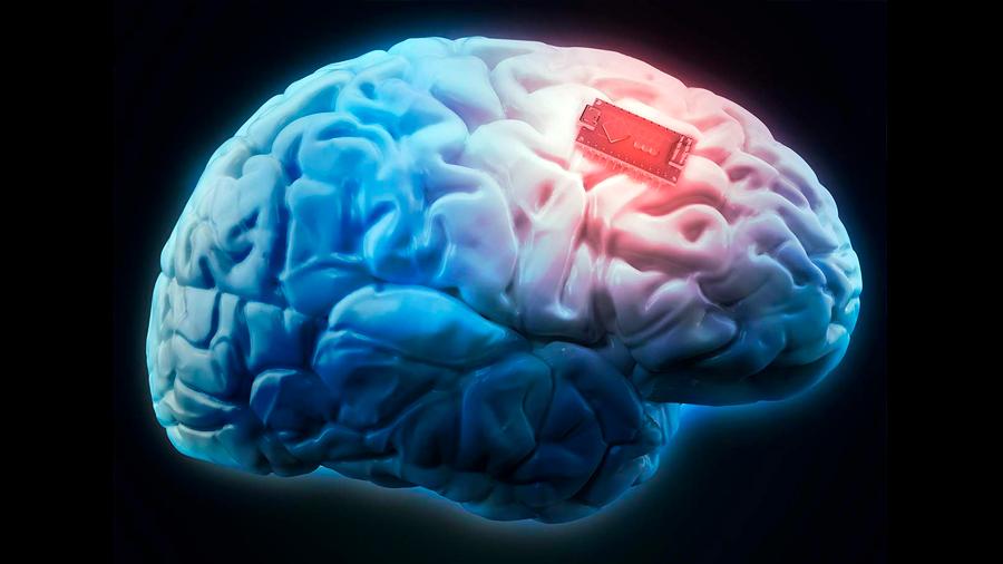 Logran implantar dispositivo cerebral para tratar ataques de epilepsia