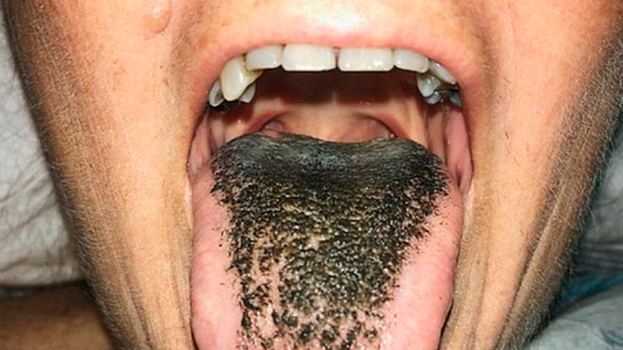 """Mujer estadunidense presente el extraño trastorno médico de la lengua """"peluda"""""""