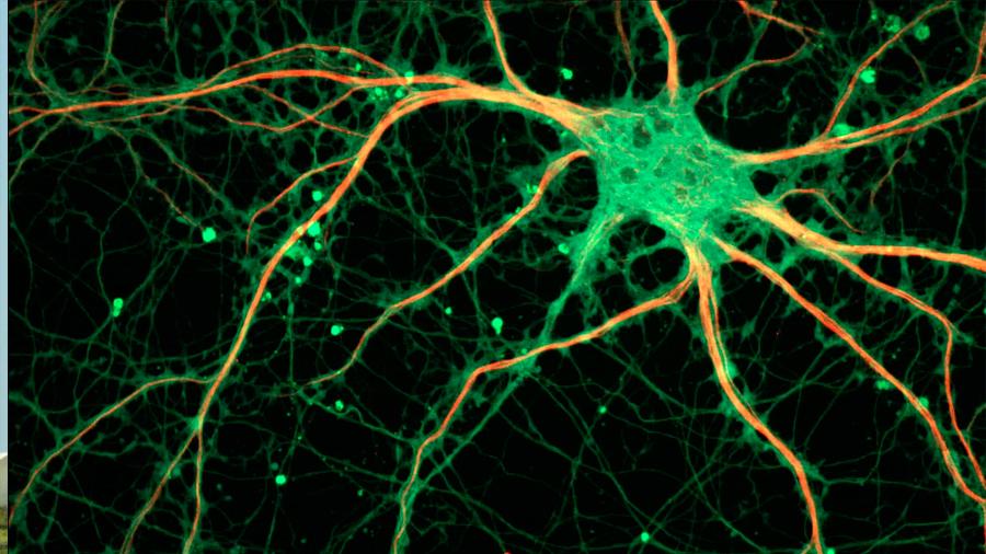 Descubren el mecanismo cerebral implicado en la memoria asociativa indirecta