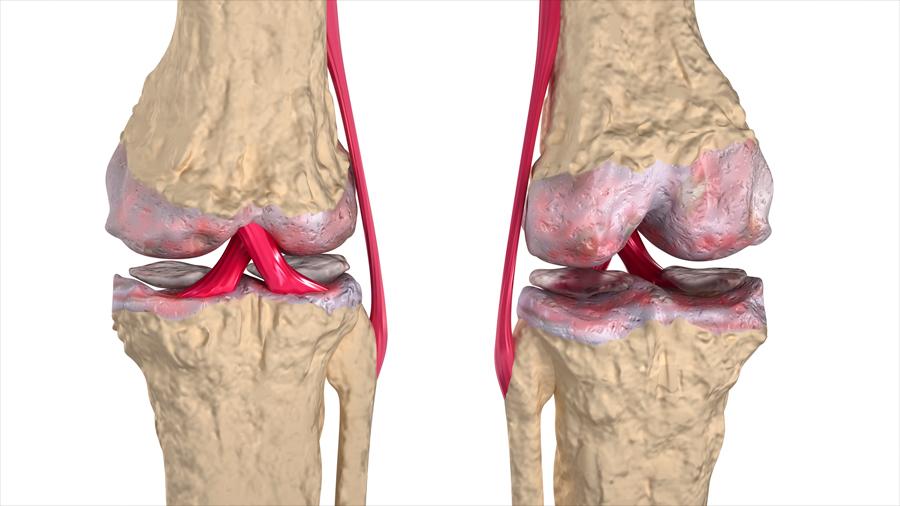 Médico chileno patenta terapia contra la artrosis que desarrolló en la Clínica Mayo