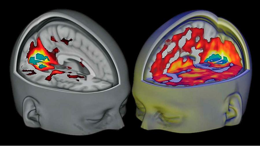 Descubren los efectos del LSD en el cerebro gracias al modelado computacional