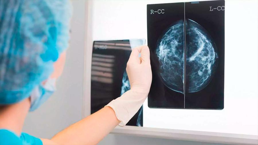 Prueban con éxito en ratones un fármaco para tratar algunos cánceres de mama