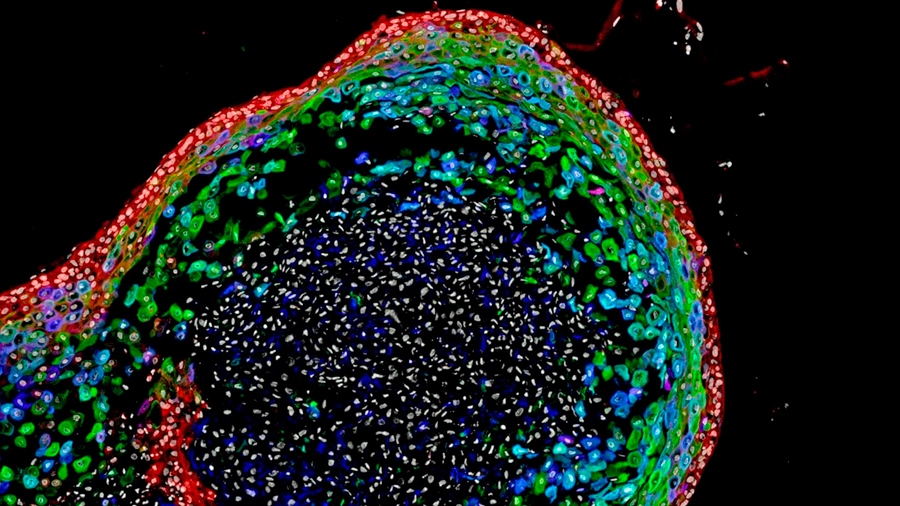 Hacen crecer tejido de esófago a partir de células madre en un laboratorio
