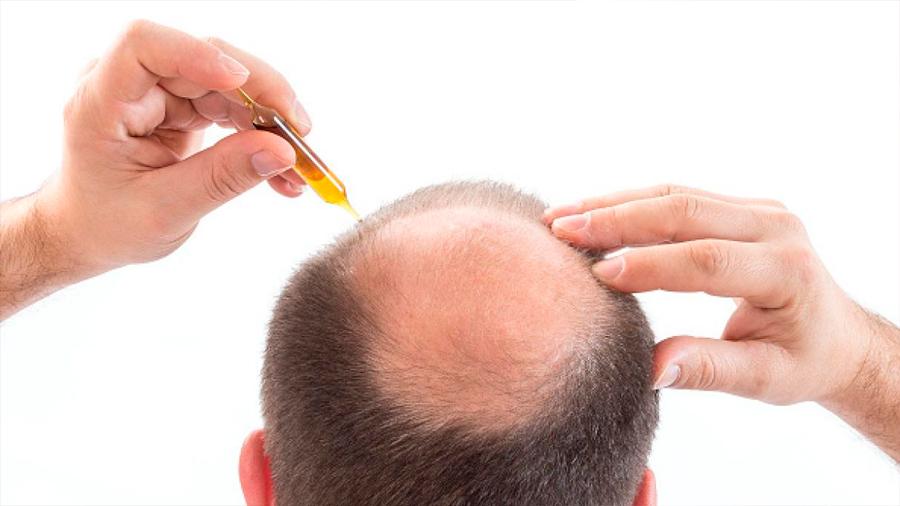 Por casualidad, científicos descubren medicamento contra la calvicie