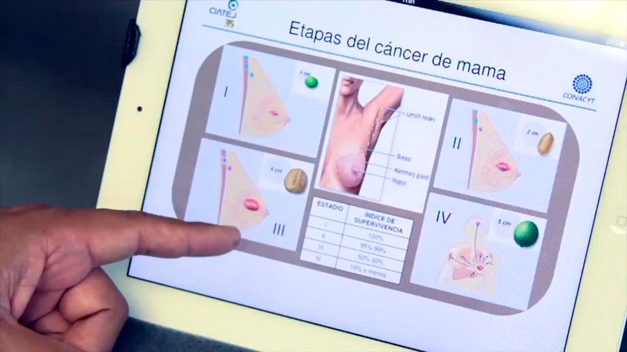 Desarrollan científicos mexicanos método de inmunodiagnóstico que detecta cáncer de mama en etapas iniciales