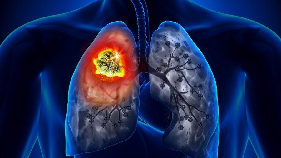 Crean análisis de sangre para detectar el cáncer de pulmón no microcítico cuando aun es operable