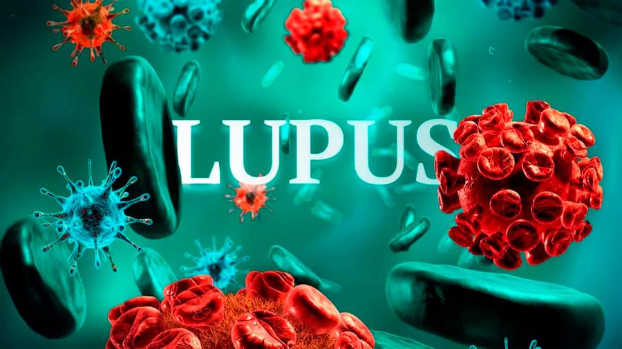 Investigadores descubren las células precursoras del lupus eritematoso