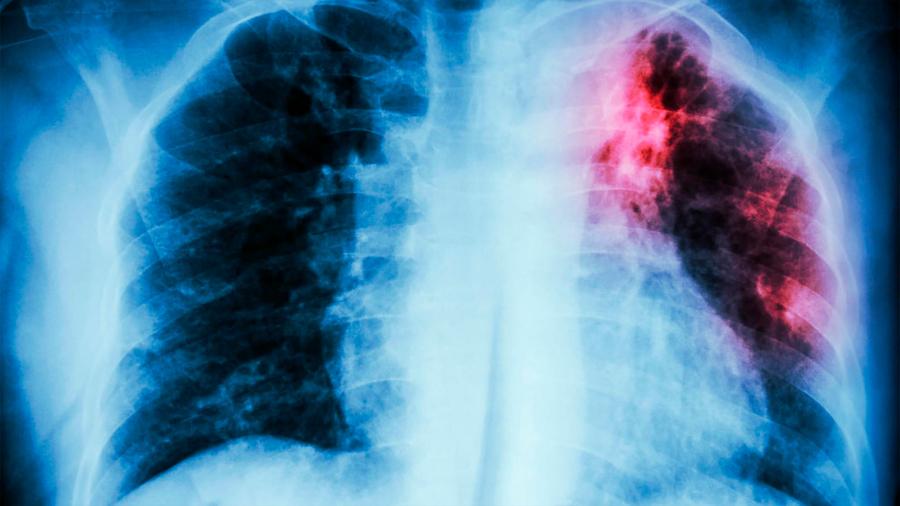 Incursiona científica mexicana en Alemania en soluciones fisiológicas a la fibrosis pulmonar