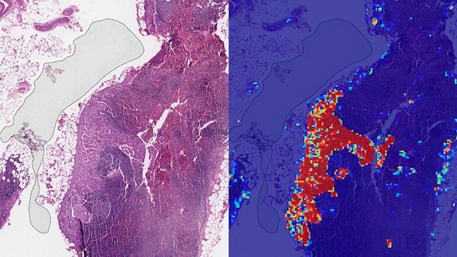 IA de Google es mejor diagnosticando el cáncer de mama avanzado que los patólogos humanos