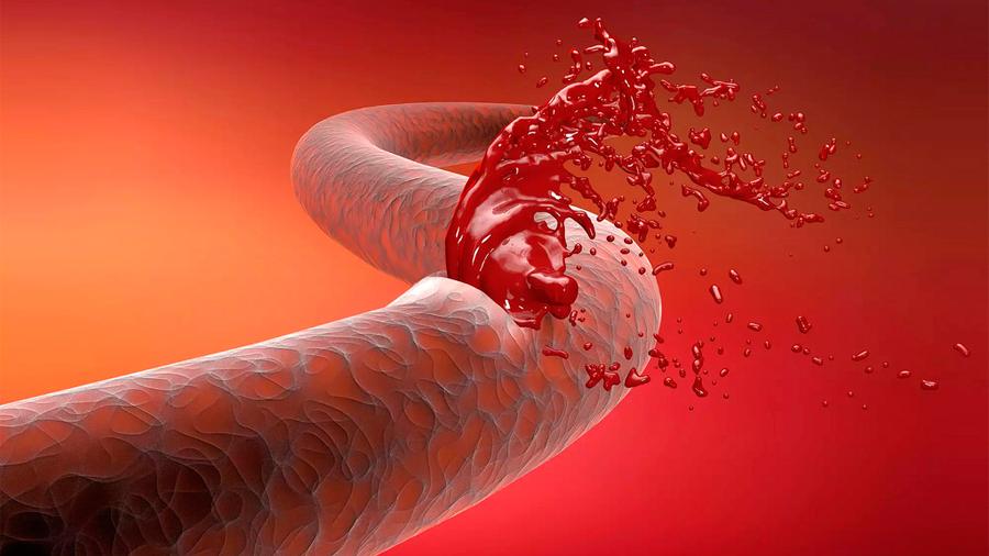 Sólo 25% de mexicanos con hemofilia tienen cuidados necesarios del sector salud