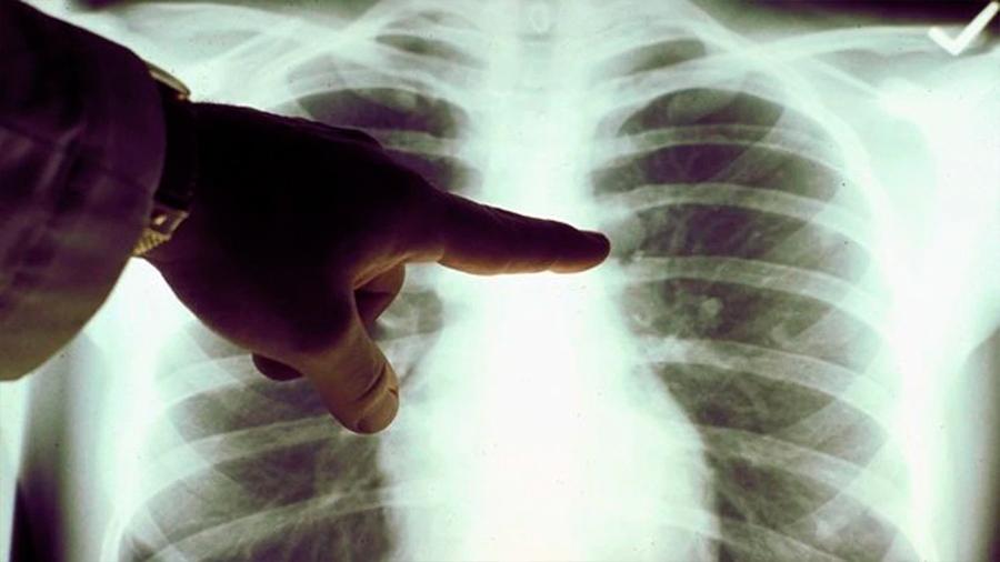 Muere mujer de cáncer 20 meses después de recibir trasplante de pulmones de fumadora