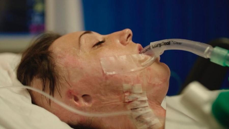 Cómo es la unidad de quemados más grande de Europa que trata a víctimas de ataques con ácido