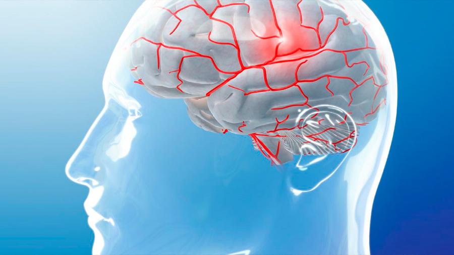 Migraña: el uso excesivo de analgésicos cronifica el dolor