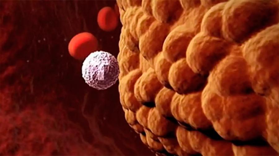 Investigadores descubren tratamiento prometedor contra tumores cerebrales agresivos