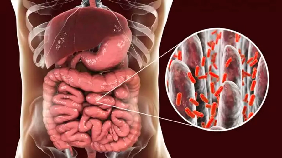 Algunos productos de la flora intestinal pueden promover la diabetes tipo 2