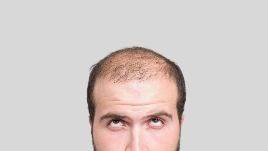 Así es llamativa técnica de expansión tisular del cuero cabelludo para tratar la calvicie