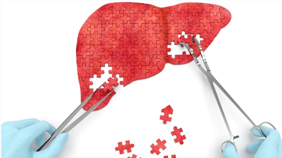 Hallazgo de un joven argentino, clave para entender la regeneración del hígado graso