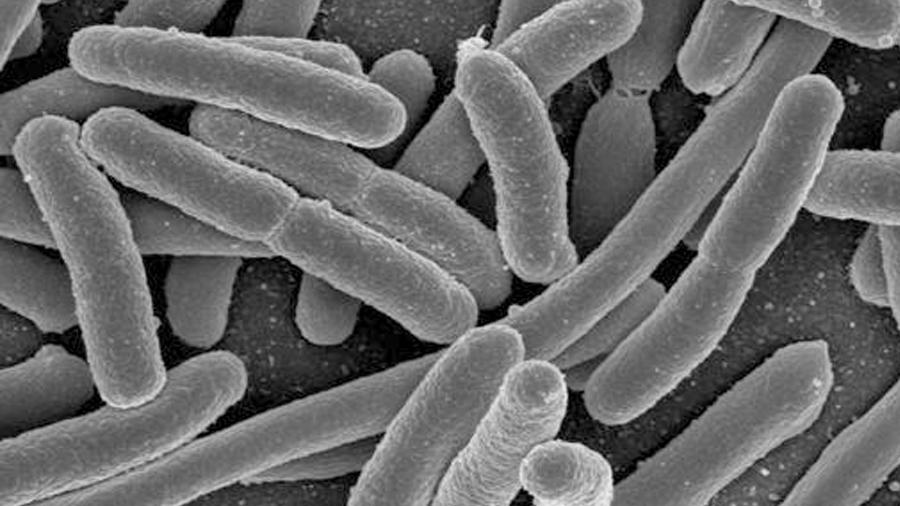 Hallan pruebas de que bacterias intestinales viven en el cerebro