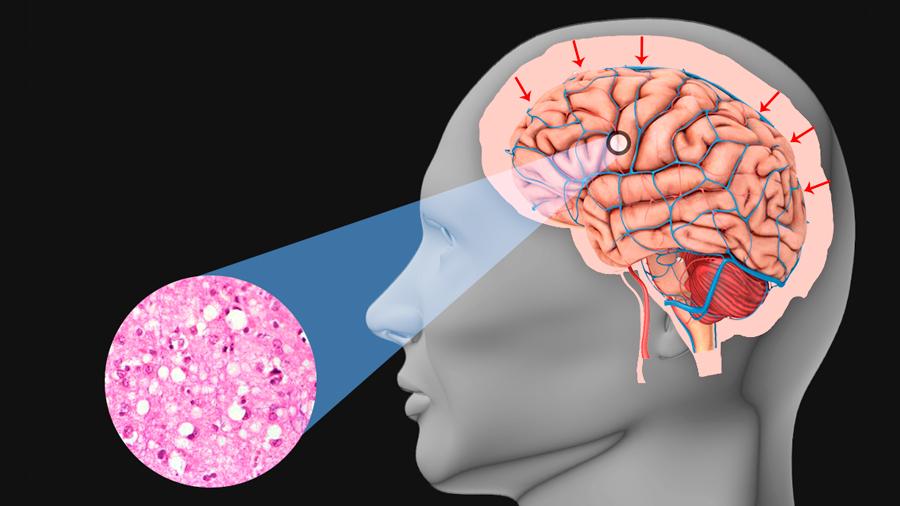 La enfermedad de Creutzfeldt-Jakob (raro transtorno cerebral) propaga priones a los ojos