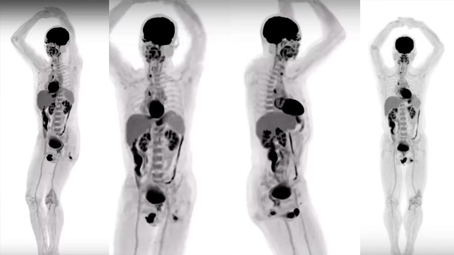 Estas son las imágenes del primer escáner de cuerpo entero del mundo