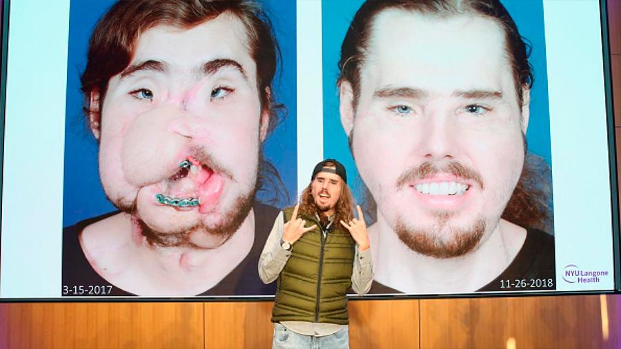Nuevo rostro de Cameron Underwood: el antes y después del trasplante facial más avanzado del orbe