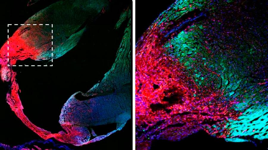 Fin a polémica científica: el corazón adulto no tiene células madre y el musculo cardiaco no se puede reemplazar