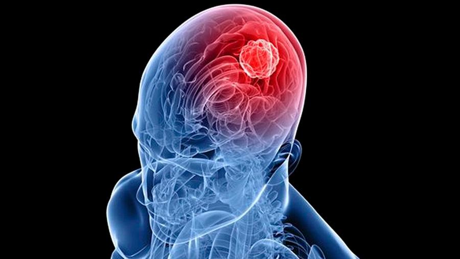 Científicos de Hong Kong descubren mecanismo de mutación de cáncer cerebral mortal