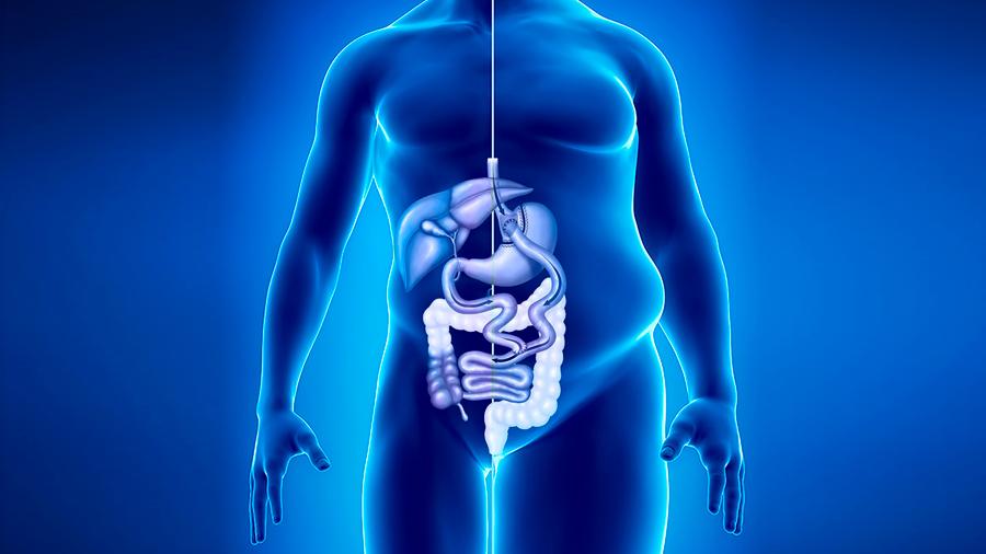 Más de 10 años de vida al paciente diabético que se somete a cirugía bariátrica