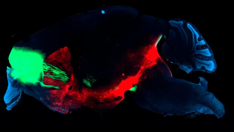 Identificado el circuito cerebral de la adicción a las drogas