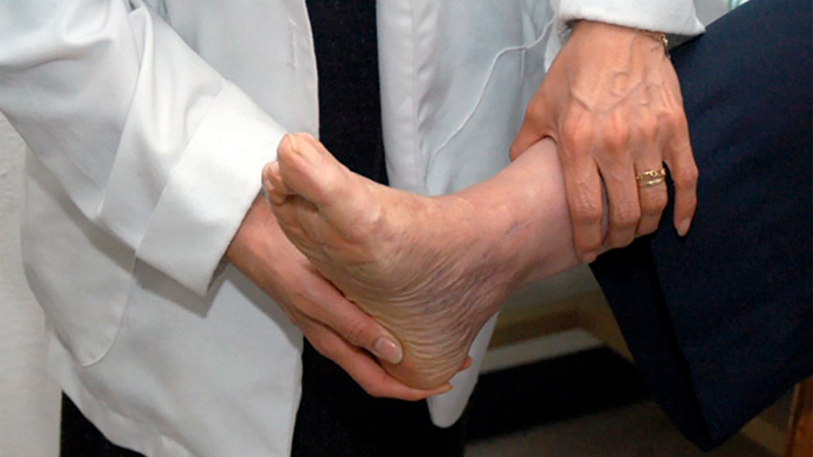 Con nanopartículas de plata tratan científicos mexicanos de forma efectiva el pie diabético