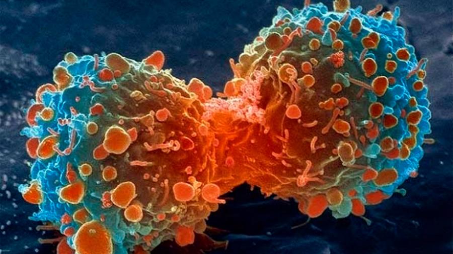Hallan mecanismo con el que genes dan lugar a tumores