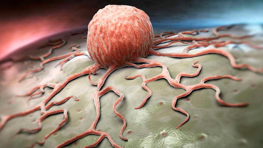 Dos fármacos transforman células cancerosas en grasa para frenar la metástasis