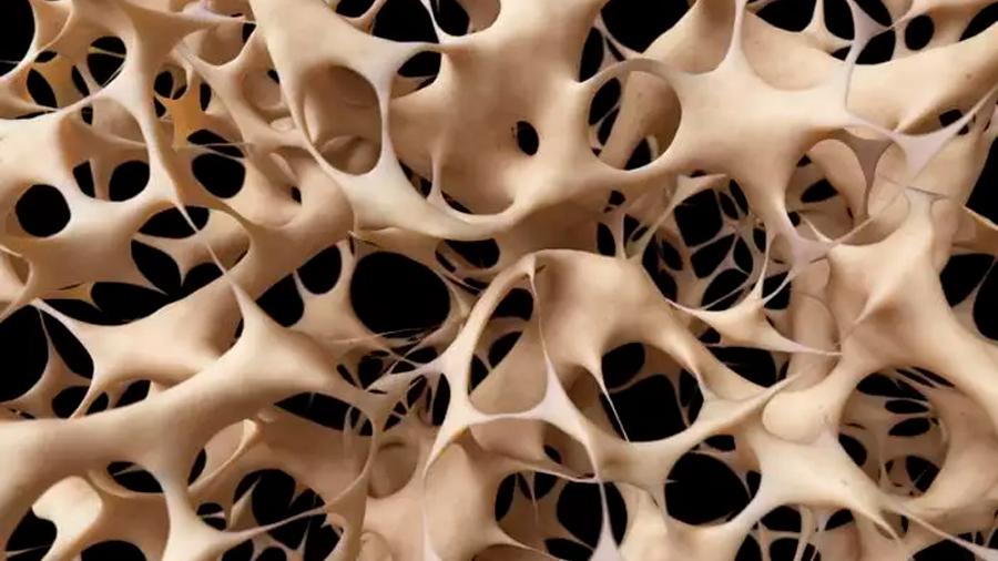 Identifican una proteína que acelera la reparación de las fracturas