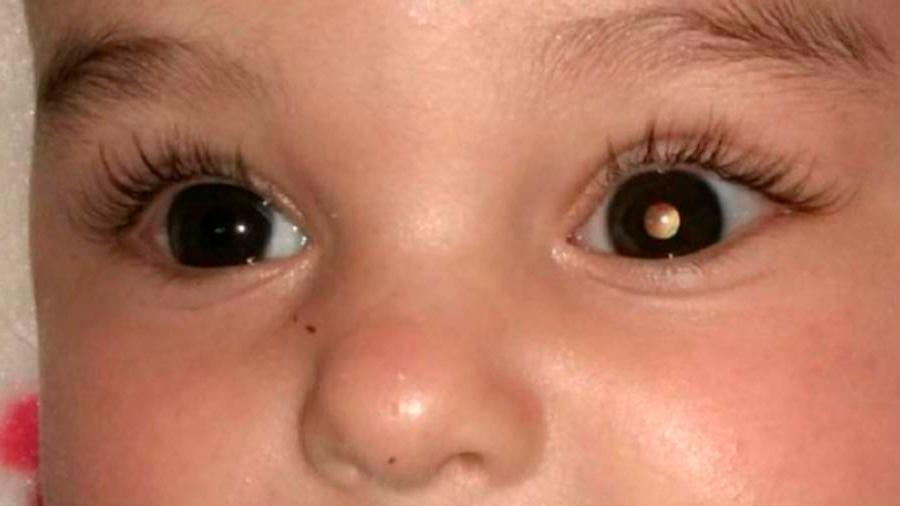 Crean fármaco biológico que tratar el cáncer de retina en niños y evita la extirpación del ojo