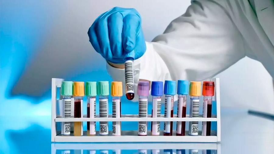 Hasta 10 años puede tardar la detección de una enfermedad rara