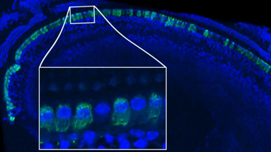 Curan la sordera genética sustituyendo un gen defectuoso por uno sano