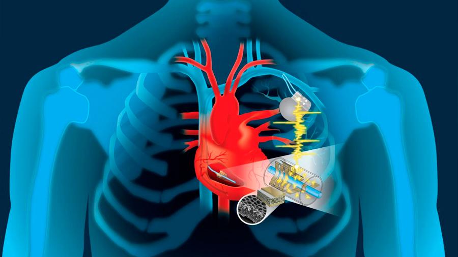 El corazón podrá recargar las pilas de marcapasos y desfibriladores