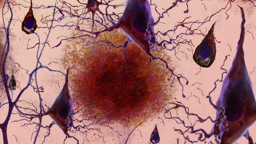 Identifican una nueva terapia contra el Alzheimer que autorregula las células del paciente