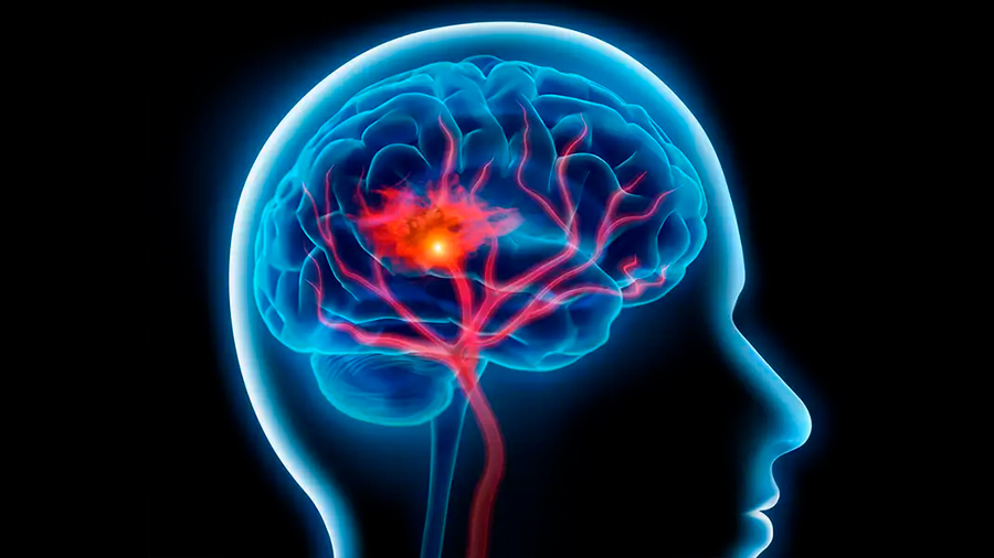 Descubren al culpable de disminución de flujo sanguíneo cerebral en personas con Alzheimer