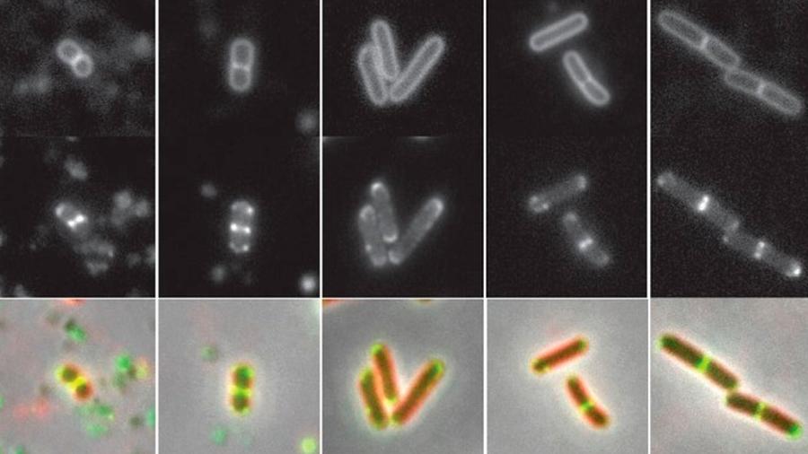 """Descubierta una """"estrategia zombie"""" con la que las bacterias sobreviven la inanición"""