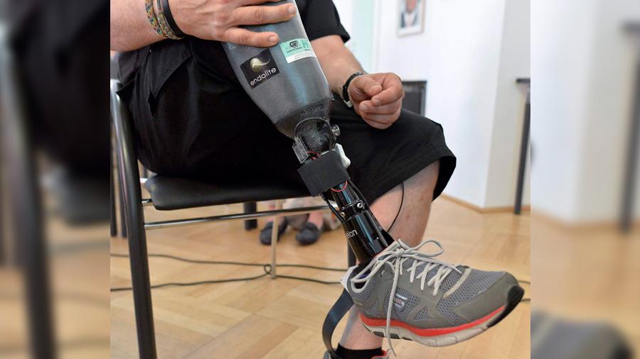 Ciencia robótica: mejoran capacidad de sentir de las prótesis para miembros amputados