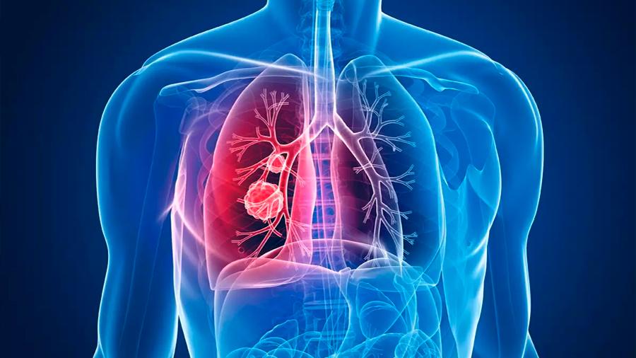 Nuevo fármaco y tratamiento para la fibrosis quística cuesta 272 mil dólares al año
