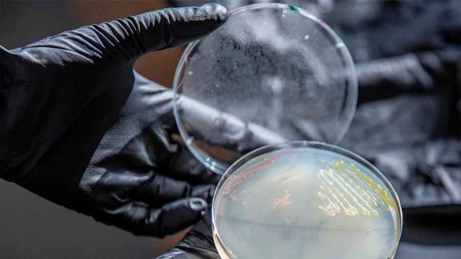 Logran un microbio de diseño prometedor para producir plástico de las plantas