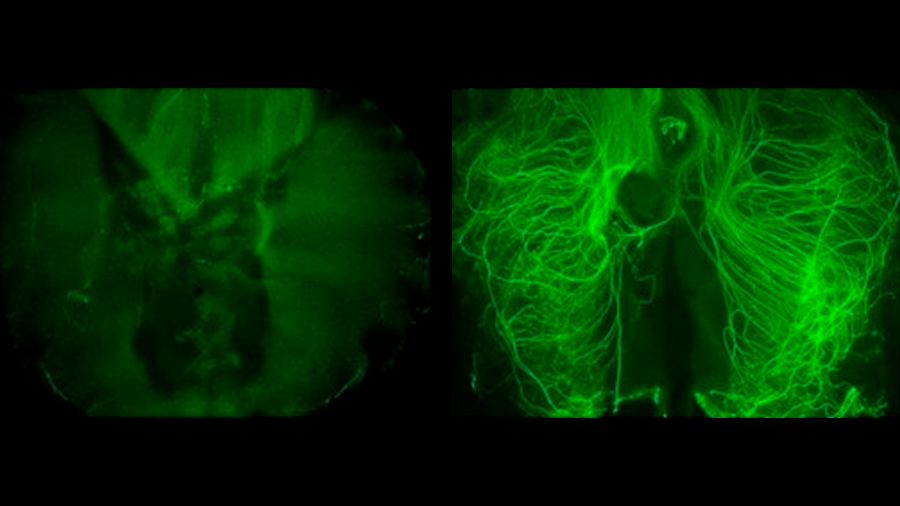 Identifican un nuevo papel de las células que sustentan los nervios