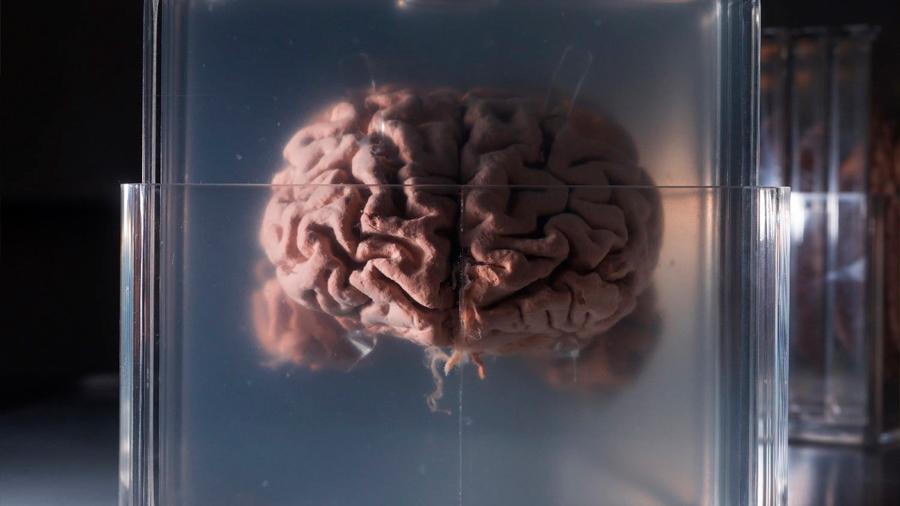 Conserve su cerebro para siempre sometiéndose a suicidio asistido