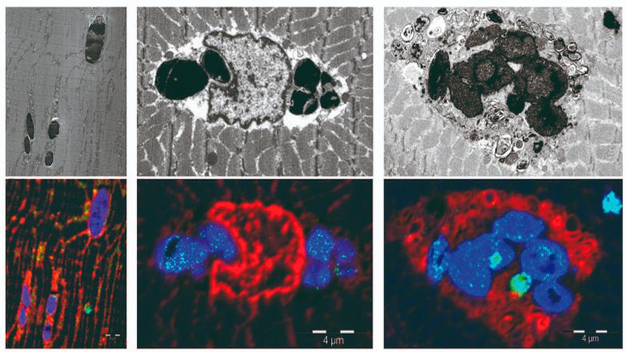 Descubren una nueva enfermedad muscular causada por una mutación genética