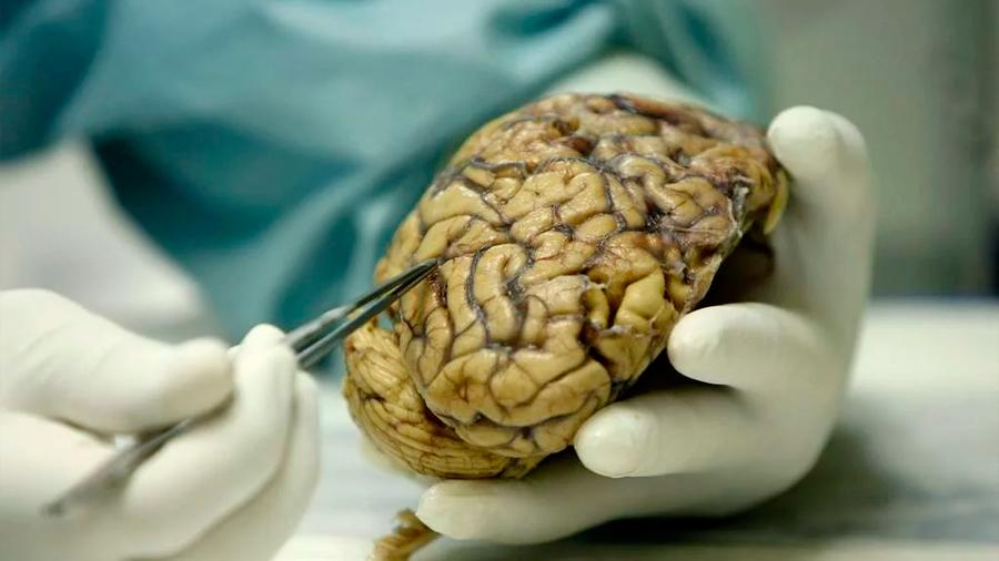 Descubren un proceso cerebral común para dormir y envejecer