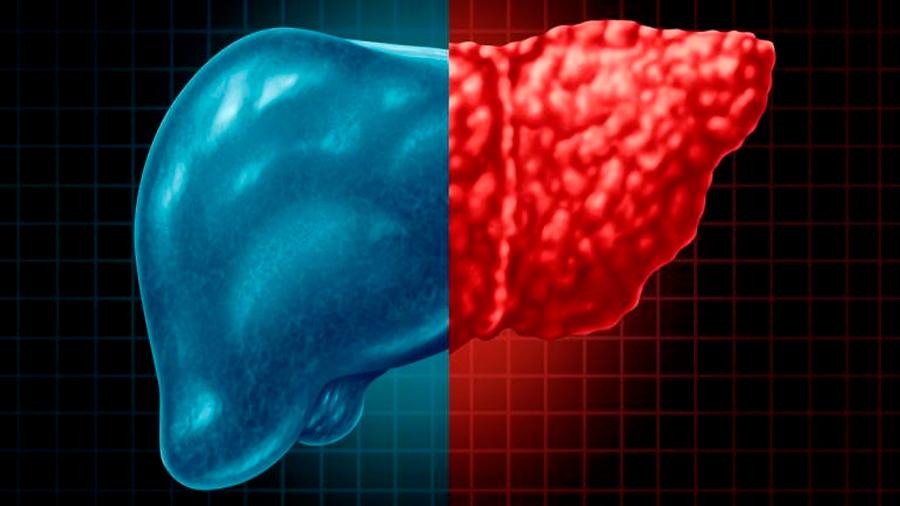 Un fármaco experimental mejora la diabetes tipo 2 y el hígado graso