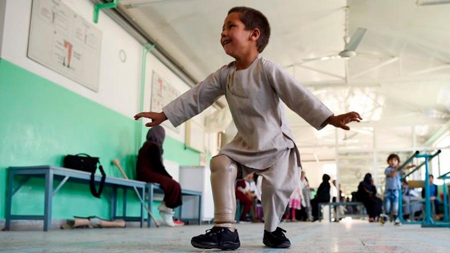 Niño afgano baila al recibir prótesis de su nueva pierna